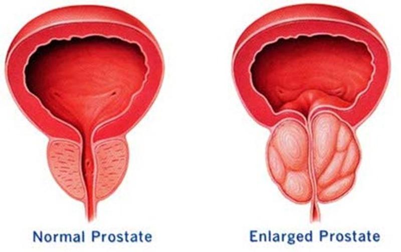 rtu prostata tecnica quirurgica