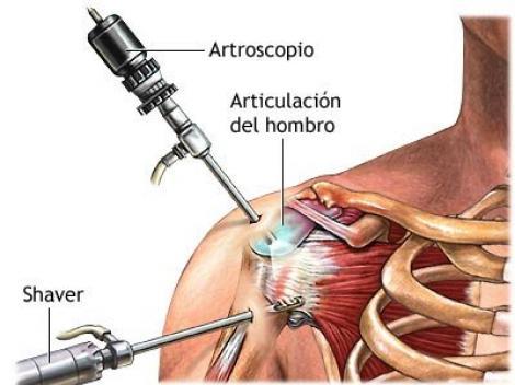 Shoulder Dislocations Treatment Shoulder Dislocation in